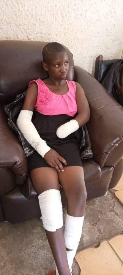 Girl Narrates How Man Cut Off Her Hand With Machete For Resisting Rape