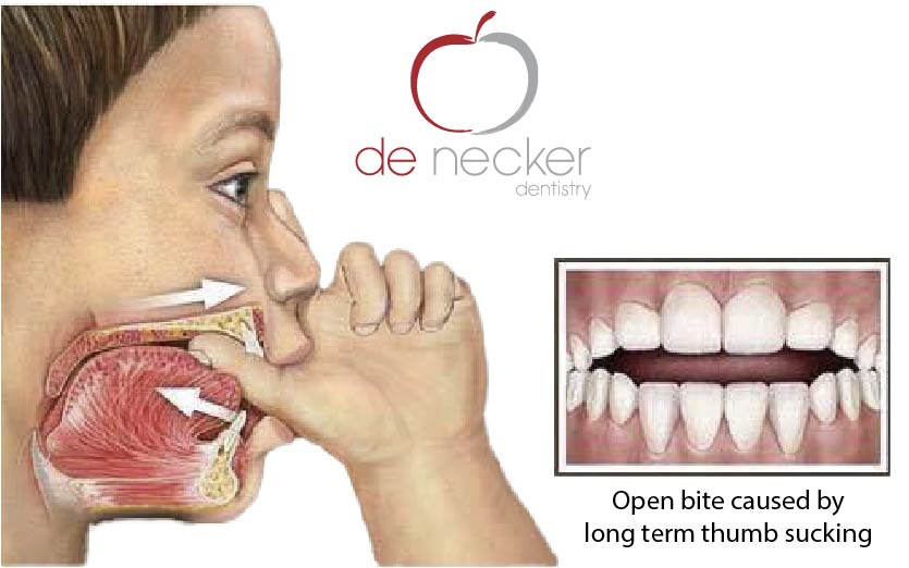 thumb sucking dentist